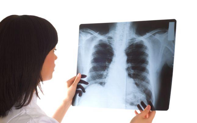 Pneumonia a mai curmat o viață!