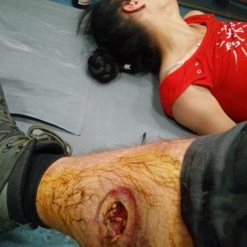 GROAZNIC: Un tânăr artist din Bistrița a fost rănit la protestul din Piața Victoriei! O grenadă cu șrapnel i-a găurit piciorul