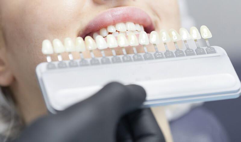 Joaca de-a dentistul în două saloane de înfrumusețare din Bistrița. Printre masaje și manichiură, cosmeticienele făceau și albiri profesionale