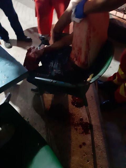 FOTO ȘOCANT: A vrut să-l omoare cu un cuțit!