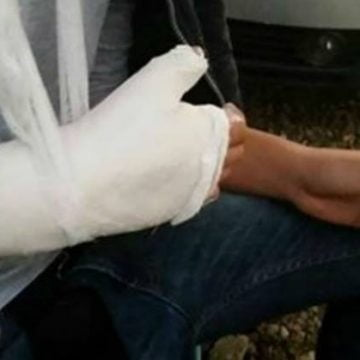Efectul petardelor: Au ajuns la UPU, răniți la degete sau ochi