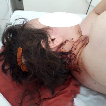 Rebrișoara: Doi angajați din sistemul sanitar atacați cu bâte!
